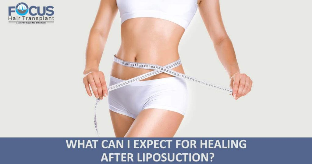 What Can I Expect For Healing After Liposuction?