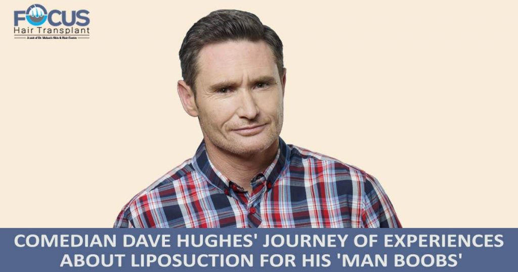 Comedian Dave Hughes' journey of experiences about liposuction for his 'MAN BOOBS'