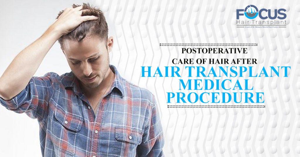 hair trainpalnt post operation
