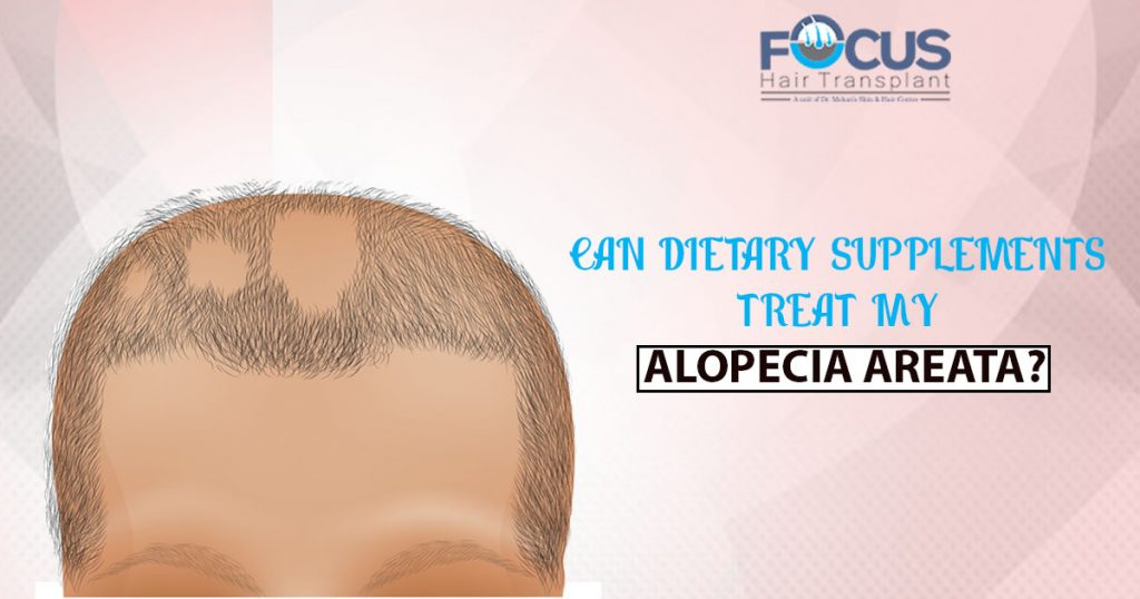 Can dietary supplements treat my alopecia areata