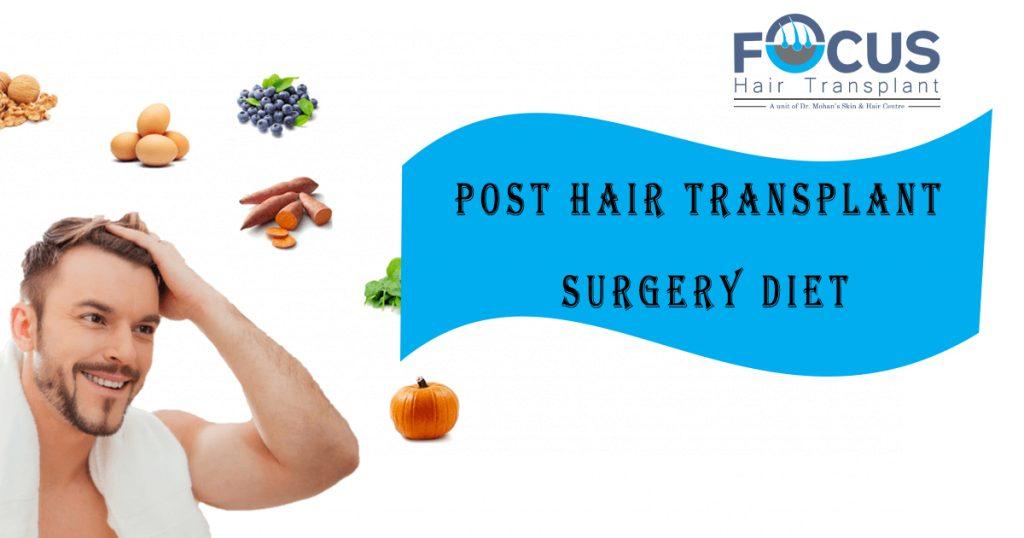 Post hair transplant diet