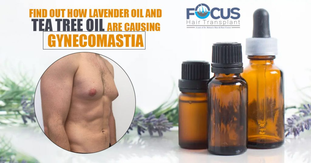 Find Out How Lavender oil and tea tree oil are causing Gynecomastia