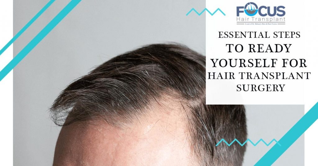 Essential steps to ready yourself for hair transplant surgery