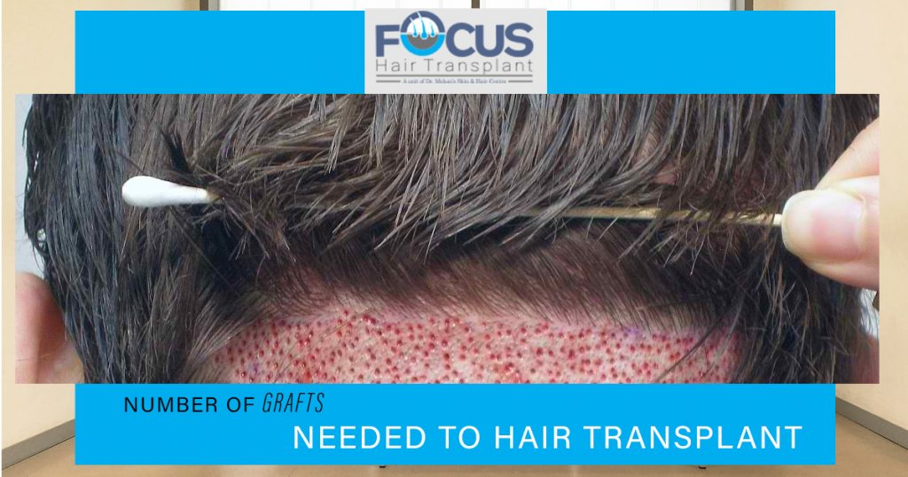 Number of grafts needed to hair transplant