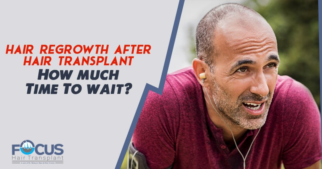 Hair Regrowth After Hair Transplant How much Time To wait
