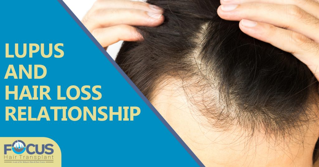 LUPUS and Hair loss relationship