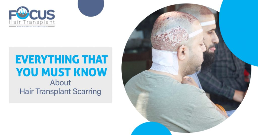 Everything That You Must Know About Hair Transplant Scarring