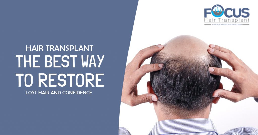 Hair Transplant The Best Way to Restore Lost hair and confidence