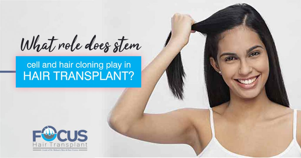 What role does stem cell and hair cloning play in hair transplant