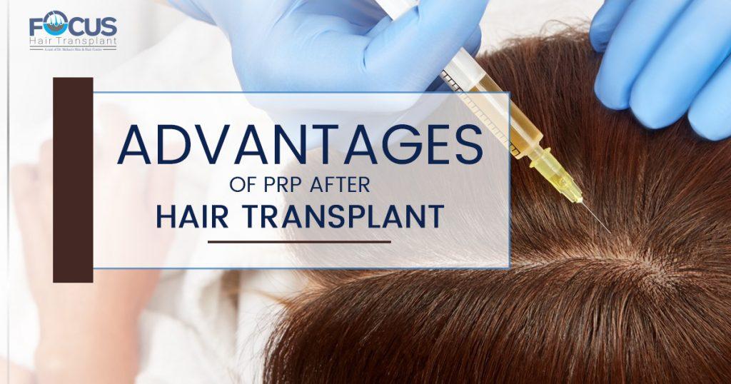 Advantages of PRP after hair transplant