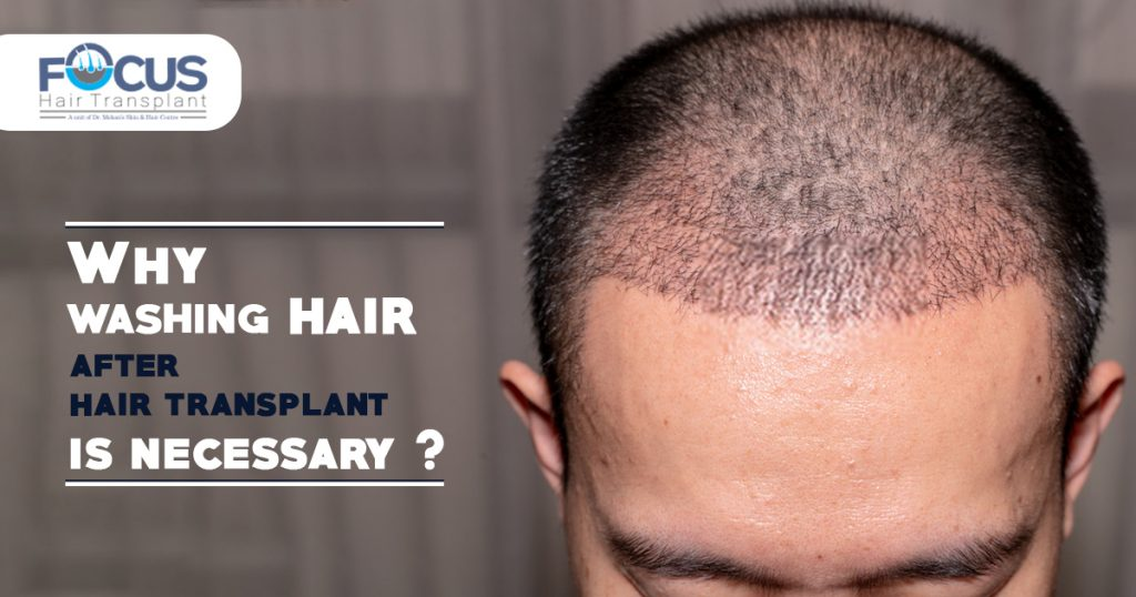 Why washing hair after hair transplant is necessary
