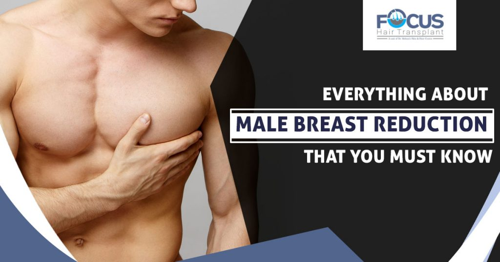 Everything about male breast reduction that you must know
