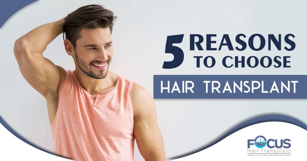 5 Reasons to choose hair transplant