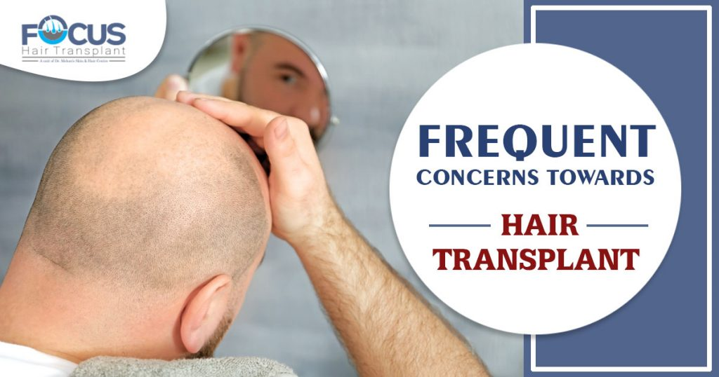 Frequent Concerns towards Hair Transplant
