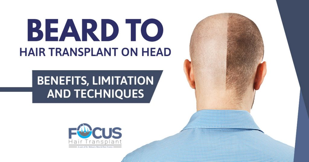 Beard to Hair Transplant on head Benefits, limitation and techniques