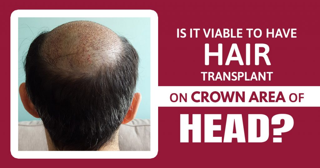 Is it viable to have hair transplant on crown area of head
