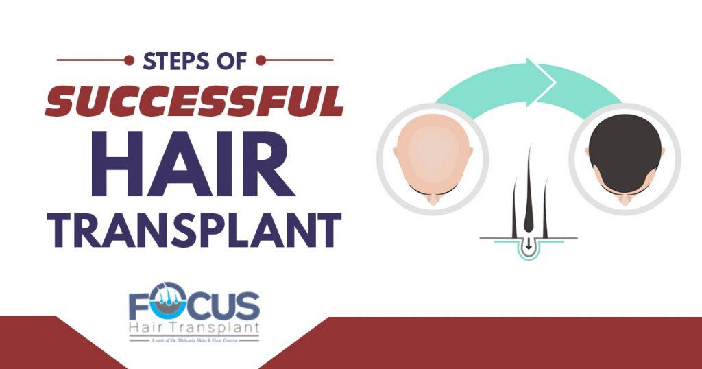 Steps of successful hair transplant