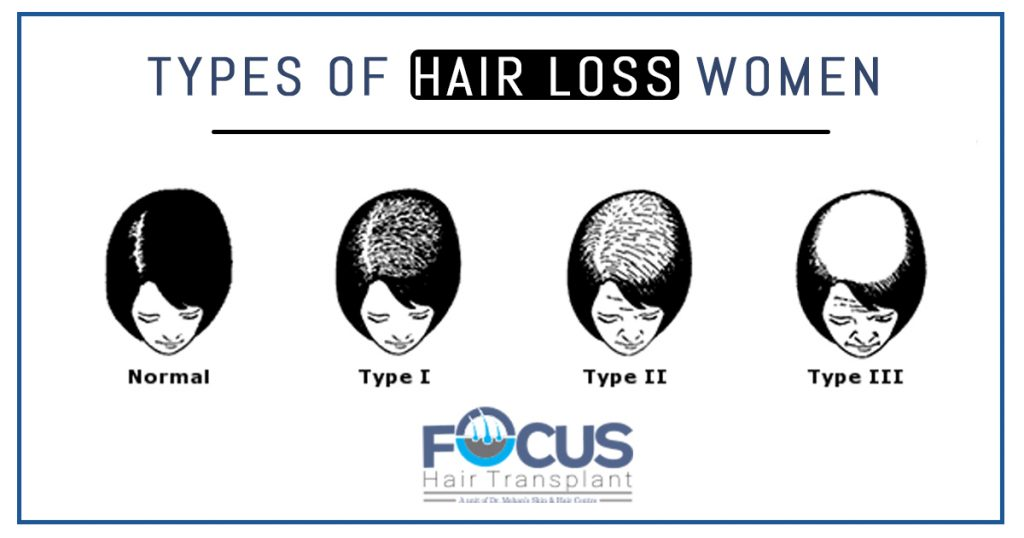 types of hair loss in women
