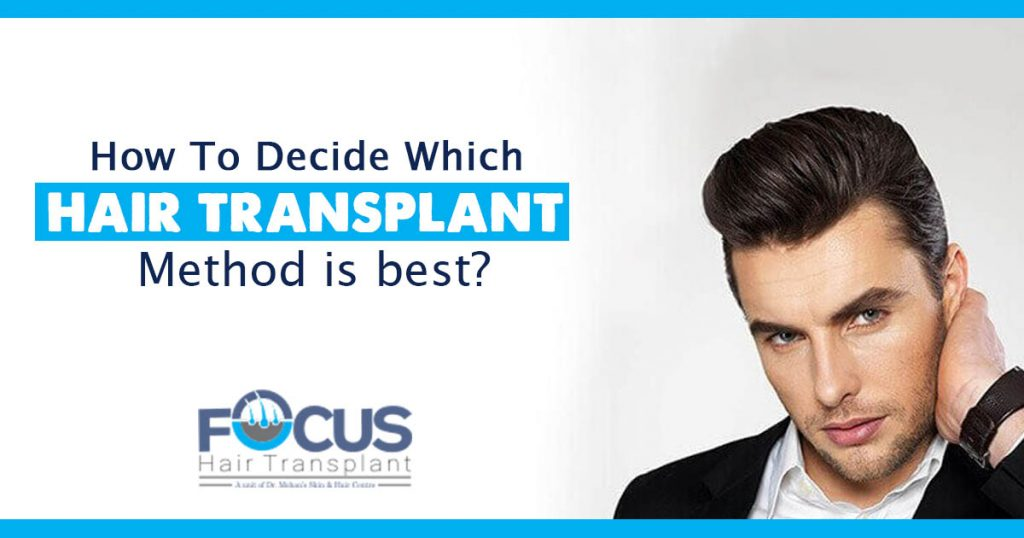 How to decide which hair transplant method is best