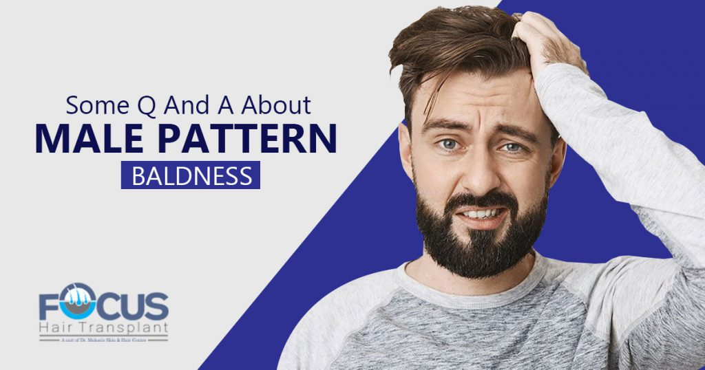 Some Q And A About Male Pattern Baldness