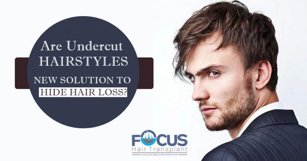 new solution to hide hair loss